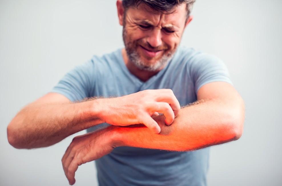 濕疹症狀 , 做足保濕工作,對症下藥即可緩解不適